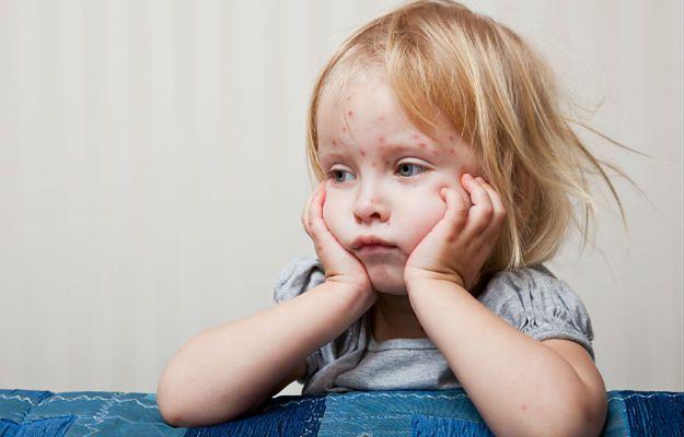 """W Niemczech wzrost zachorowań na odrę. """"Polacy rezygnują ze szczepienia dzieci"""""""