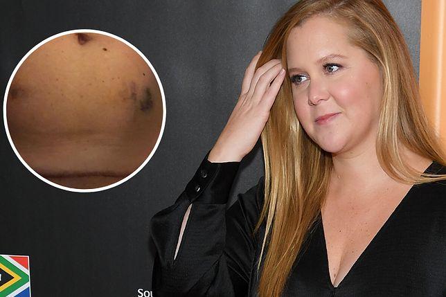 Amy Schumer poddaje się in vitro. Pokazała brzuch po zastrzykach