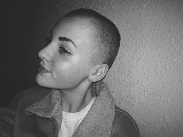 Niamh Baldwin ma 14 lat i mieszka w Kornwalii. Szkoła ukarała ją za nieprzepisowy wygląd, mimo że włosy obcięła, żeby pomóc organizacji charytatywnej.