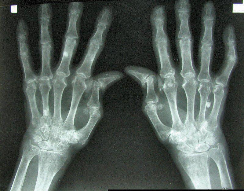 Zdjęcie rentgenowskie dłoni