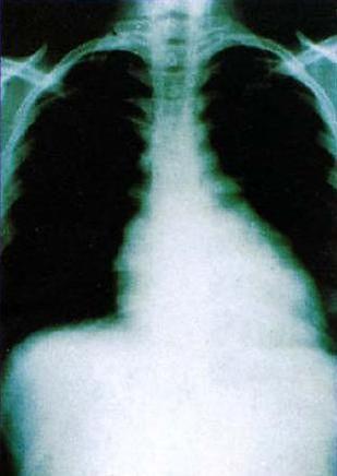 Klatka piersiowa chorego na chorobę Chagasa