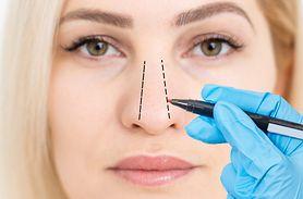 Krzywa przegroda nosa - przyczyny, objawy, leczenie, operacja