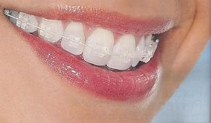 Ortodonta w Warszawie? W kolejce poczekasz 5 lat