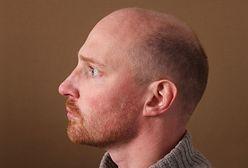 Jak zapobiec wypadaniu włosów u mężczyzn?