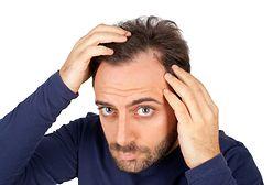Sposoby leczenia łysienia androgenowego u mężczyzn