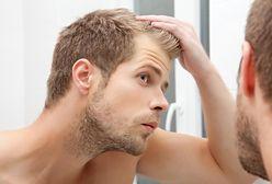5 skutecznych sposobów na męskie łysienie