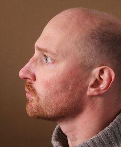 Wypadanie włosów u mężczyzn – przyczyny i leczenie