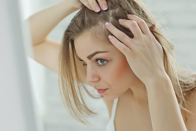 Wypadające włosy są zmartwieniem wielu osób, nie tylko mężczyzn
