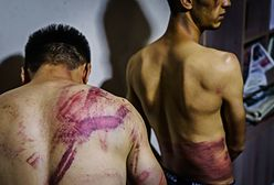 Horror w Afganistanie. Dziennikarze pokazali zdjęcia. Mówią o torturach