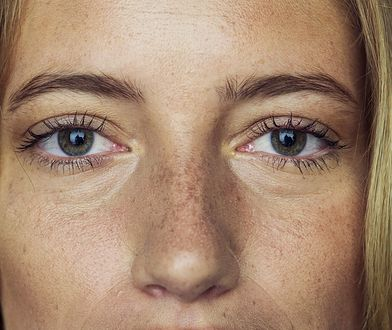 Maseczka peel off. Czy jej stosowanie może podrażnić lub uszkodzić skórę?