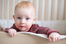 Czego nie należy podawać dziecku z alergią?
