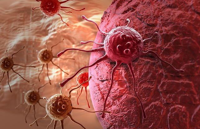 Naukowcy opracowują test moczu, który wykryje raka jelita grubego.