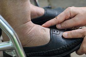 Puchnięcie nóg - objawy, przyczyny, domowe sposoby
