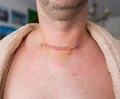 Zwiększa ryzyko raka piersi i tarczycy. Wielu z nas tak robi przed snem