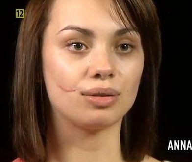 """Anna Koryto na operacyjnym stole! Bliznę usunięto jej w """"Sekretach chirurgii""""!"""