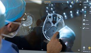 COVID-19. Możliwe uszkodzenia mózgu