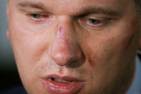 Przemysław Wipler utrzymuje, że został pobity przez policjantów