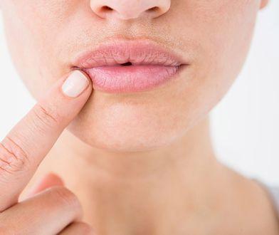 Sprawdź, jak dbać o usta, żeby były gładkie latem i zimą