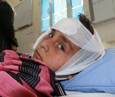 Chłopiec został ranny w nalocie na szkolny autobus w Jemenie