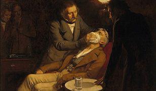 Znieczulenie chirurgiczne było pierwszy raz zastosowane przez dentystę, ale historia medycyny zna też inne, mniej chlubne przypadki.