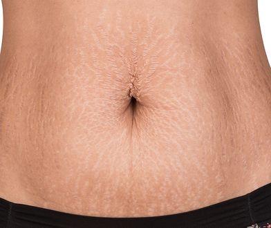 Rozstępy na brzuchu i innych częściach ciała - jak usunąć czerwone oraz białe rozstępy?
