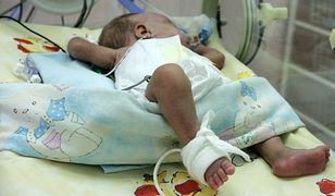Dwumiesięczne niemowlę z podejrzeniem pobicia na OIOM-ie