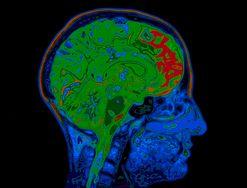 Jakie witaminy i minerały wpływają pozytywnie na pracę mózgu?