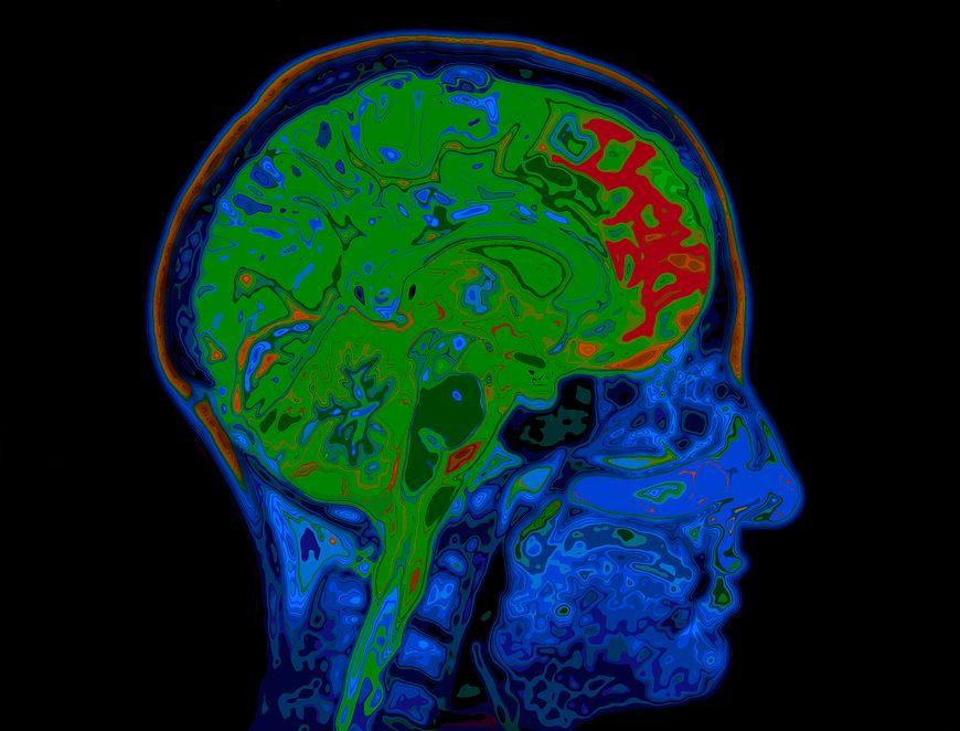 Jakie witaminy wpływają na prawidłową pracę mózgu