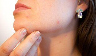 Pryszcze przed okresem to uciążliwy objaw związany ze zmianami hormonalnymi