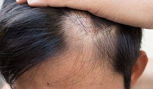 Jak pomóc w zahamowaniu łysienia?