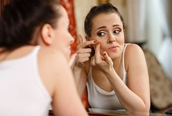 Jak pozbyć się pryszczy? Szybkie sposoby na pryszcze i walkę z trądzikiem