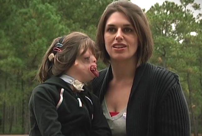 """Przez całe życie słyszy, że nie powinna się urodzić. Rodzice """"dziewczynki bez twarzy"""" uczą się od niej miłości"""