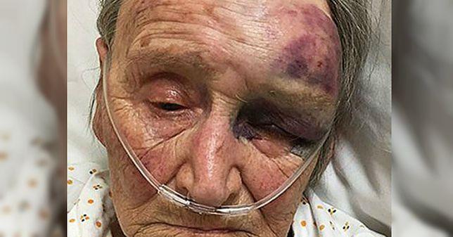 Wyciągnął 88-latkę z łóżka i brutalnie pobił. W szoku byli nawet policjanci