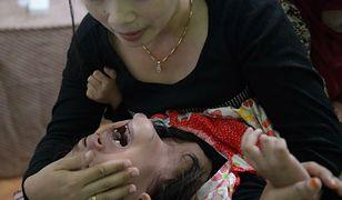 Niemcy walczą z barbarzyństwem obrzezania kobiet. Lekarze bezradni