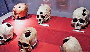 Inkowie byli prawdziwymi mistrzami w dziedzinie chirurgii, szczególnie podczas wykonywania tak zwanej trepanacji czaszki