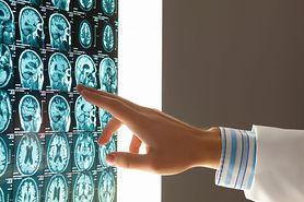 Obrzęk mózgu – charakterystyka, przyczyny, objawy, leczenie