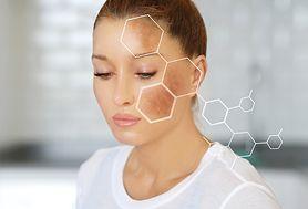 Przebarwienia na twarzy - przyczyny, diagnostyka, leczenie