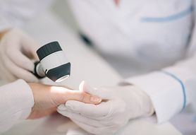 Kapilaroskopia – przygotowanie do zabiegu, przebieg zabiegu, wskazania