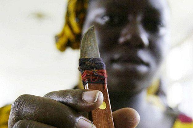 Nożyk, zardzewiała żyletka, nożyczki, gwóźdź, odłamek szkła albo skały - w niektórych częściach świata właśnie takimi narzędziami dokonuje się obrzezania kobiet
