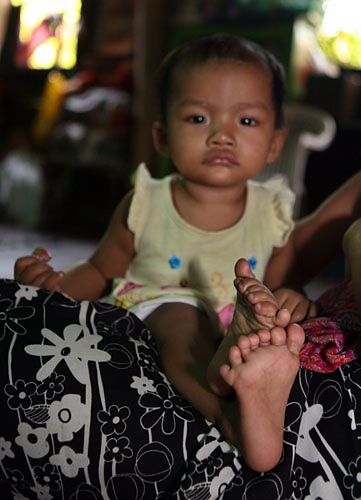 Dziecko z 26 palcami - zobacz zdjęcia