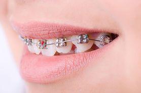 Aparat ortodontyczny - rodzaje, cena, wskazania