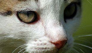 Kot zarażony wścieklizną pogryzł dziecko