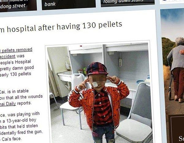 Wyjęli mu z głowy aż 130 kulek śrutu. On to przeżył!