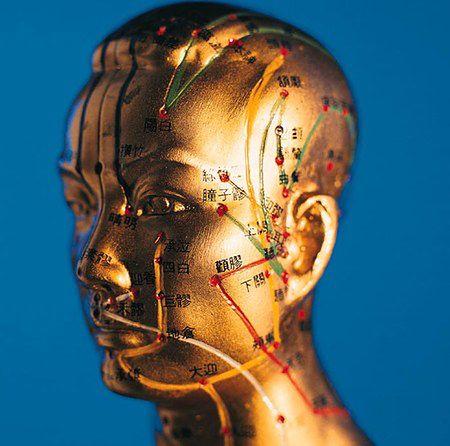 Akupunktura pomaga na bóle głowy