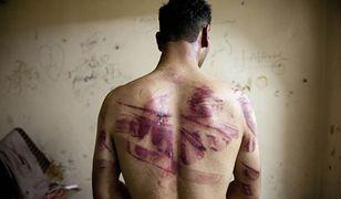 Mężczyzna, który był torturowany w więzieniu w Syrii