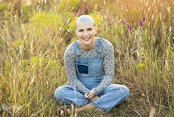 Nastolatka straciła wszystkie włosy. Z pomocą przyszła jej matka