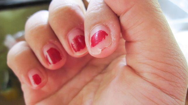 Dziewczyna obgryza paznokcie, dlatego co jakiś czas decyduje się na przedłużanie płytki