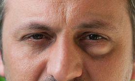 Worki pod oczami - charakterystyka, przyczyny, usuwanie, zabiegi kosmetologiczne, czego unikać, makijaż