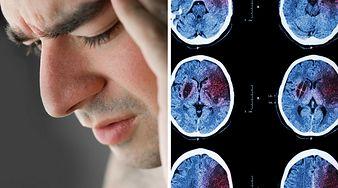 Cichy udar mózgu. Oto 10 sygnałów, które to potwierdzą i ostrzegą cię przed kolejnym