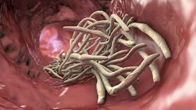 Pyrantelum Medana - charakterystyka, skład, działanie, przeciwwskazania, ciąża, dawkowanie, działania niepożądane